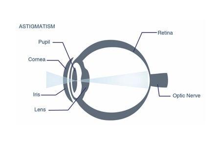 laser eye surgery astigmatism diagram